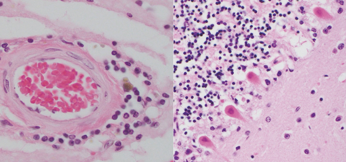 left: inflamed immune cells around blood vessel. right: cells affected by COVID-19